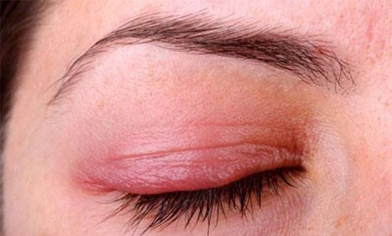 با رایجترین بیماریهای پلک چشم آشنا شوید