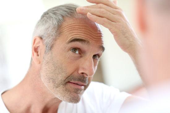 چرا موهای مردها میریزد، و چگونه باید با آن مقابله کرد؟