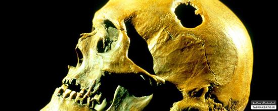 چرا مردم باستان جمجمه را سوراخ میکردند؟